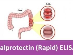人粪便钙网蛋白(Fecal Calprotectin, Human)ELISA试剂盒—钙网蛋白快速定量解决方案