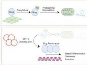 SIRT2抑制剂集锦:SIRT2影响乳腺癌新研究进展