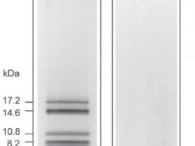 小于10kDa蛋白的分离解决方案