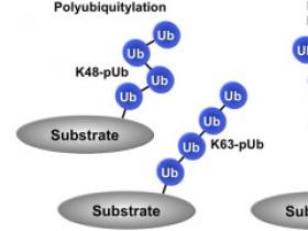 怎样选择泛素化抗体?看高手套路