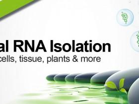 总RNA提取试剂盒(适用于血液,细胞,细菌,真菌),满足您所需!