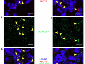 肥胖相关基因ADCY3过表达质粒--(已表达验证)