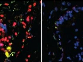 表观遗传学新进展-高通量表观遗传技术在细胞代谢领域的应用