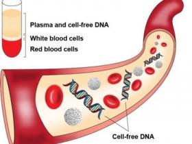 尿液cf-DNA分离方案:尿液游离DNA提取纯化试剂盒
