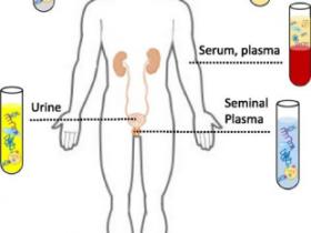 尿液收集和保存方案:Norgen尿液收集与保存管