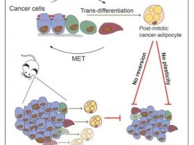 可转化为脂肪细胞?看看乳腺癌防治新发现吧!