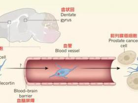 癌细胞的黑暗魔法