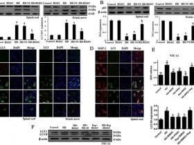 文献解读|骨髓间充质干细胞通过依赖beclin 1的自噬抑制作用来抵抗正己烷诱导的神经病变