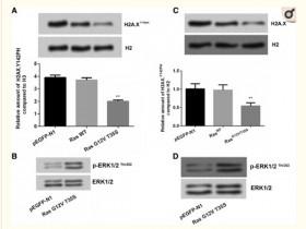 K-ras-ERK1/2通过WSTF下调H2A.XY142ph以促进胃癌的进展