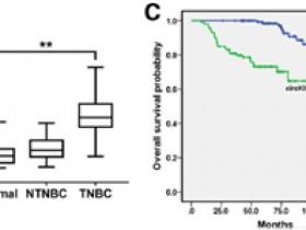 文献解读丨一种环状RNA 分子:乳腺癌预后的哨兵