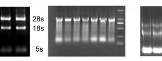 PCR疑难问题粉碎机(三)——逆转录PCR