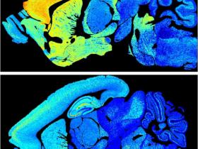 生物评论周报第122期:Science:绘制出小鼠全脑突触的终身变化图谱