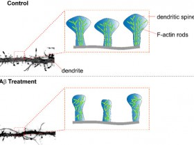 淀粉样β诱导的F-肌动蛋白去稳定性,突棘丢失