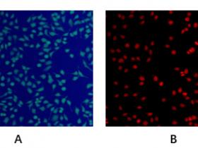细胞染色/示踪——活/死细胞双染色试剂盒解决方案