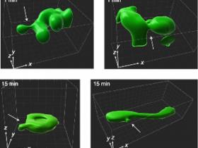 生物评论周报第152期:三维平行RESOLFT显微镜实现活细胞体积成像