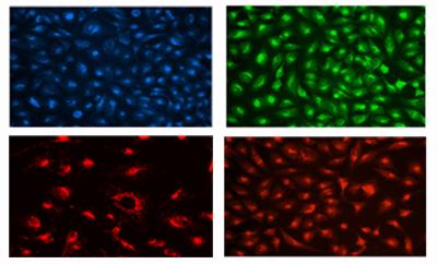 溶酶体染色试剂盒(蓝/绿/橙/红色荧光)— 超越LysoTracker!