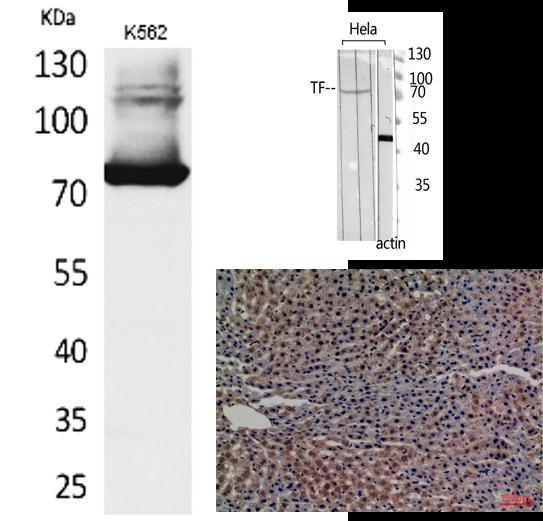 转铁蛋白(Transferrin)-血清样品的内参不二之选