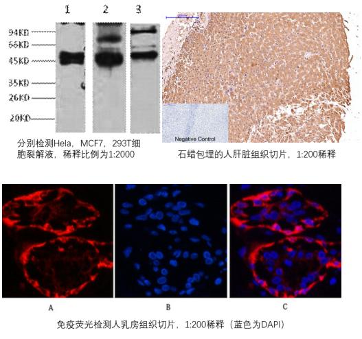 细胞角蛋白17抗体推荐:高品质CK17抗体不要错过!