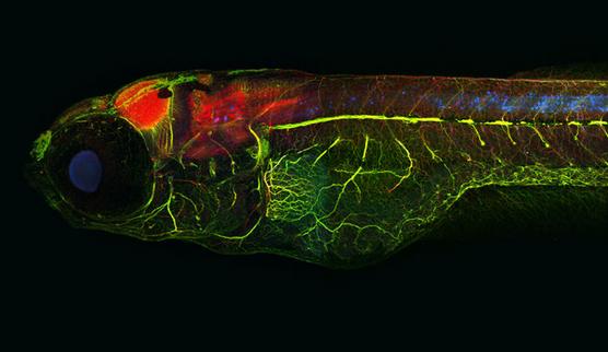 生物评论周报︱活久见,斑马鱼被用于癌症药物筛选模型。