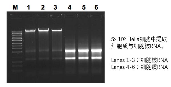 Hela细胞中提取细胞质与细胞核RNA