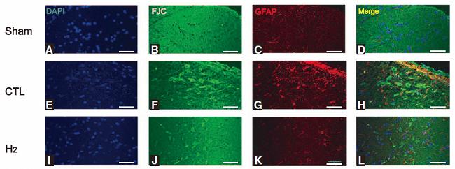 Fluoro-Jade C(FJC)染色试剂盒Brain发表文章结果图