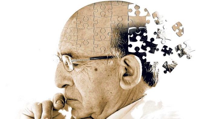阿尔茨海默氏症