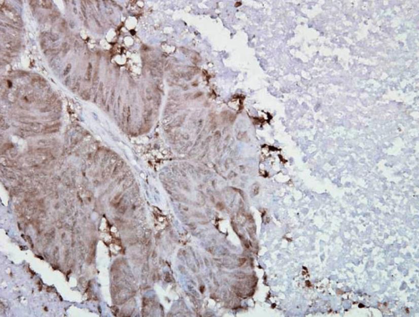 小鼠抗Hsp90 alpha单克隆抗体对人结肠癌的免疫组化分析