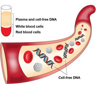 尿液游离DNA提取