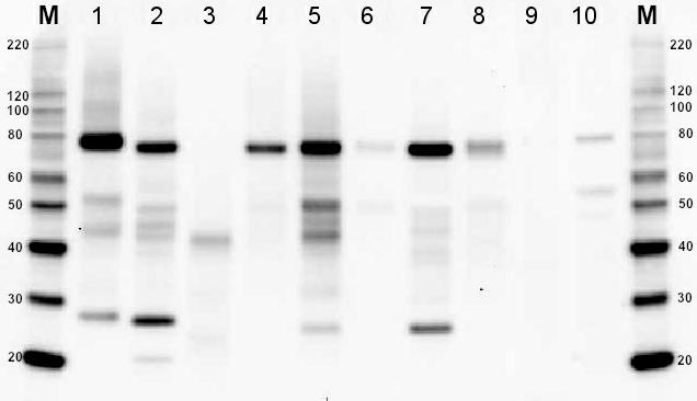 BiP 蛋白