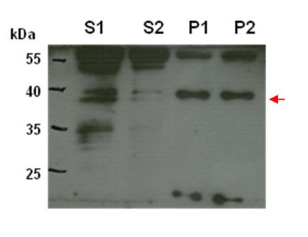 CPT6蛋白