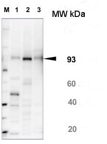 SUS1蛋白