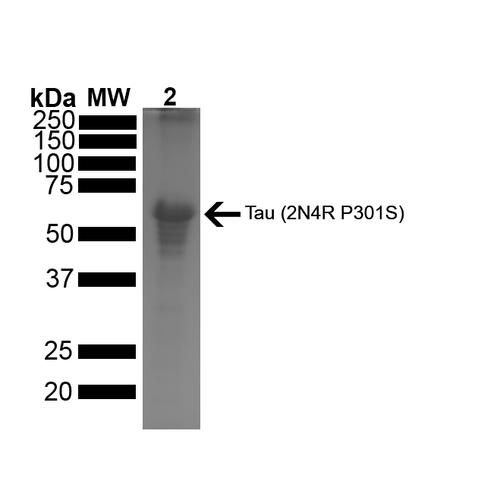 tau 蛋白