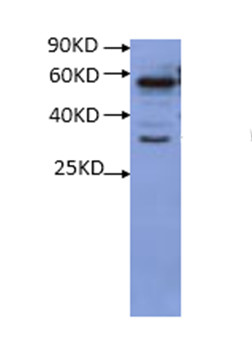 RS1蛋白研究的WB结果图