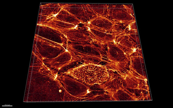 Huvec细胞
