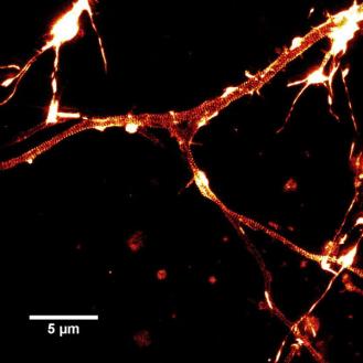 大鼠海马神经元