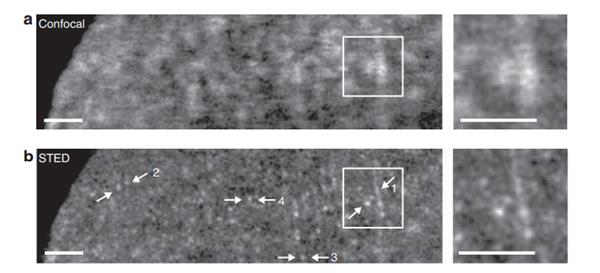 SiR-Hoechst染色HeLa细胞的共聚焦(confocal)和电镜(STED)对比