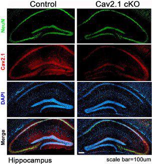 小鼠海马体切片进行免疫组化染色