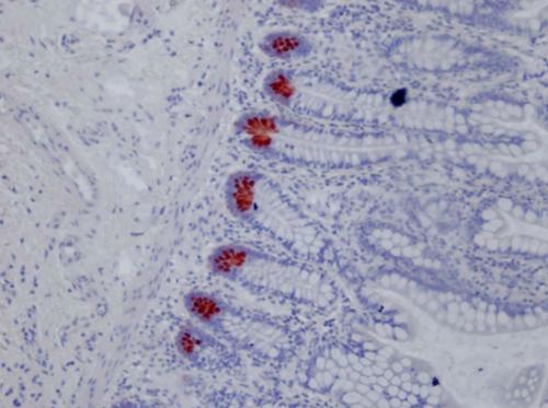 人回肠组织中的防御素5石蜡切片染色,克隆8C8