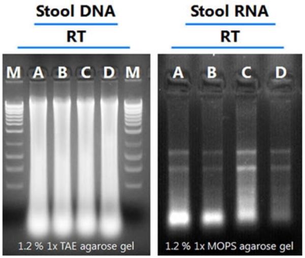 粪便收集与保存管中DNA和RNA稳定性