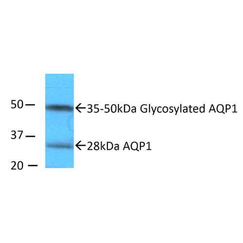 大鼠肾内髓质匀浆的Western印迹分析