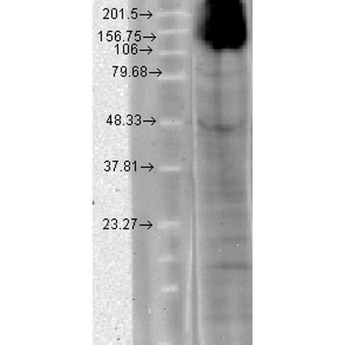 人T-HEK 细胞裂解液的免疫印迹分析