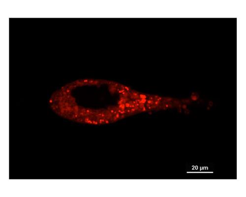 TR-603-P2染色的LNCaP前列腺癌細胞