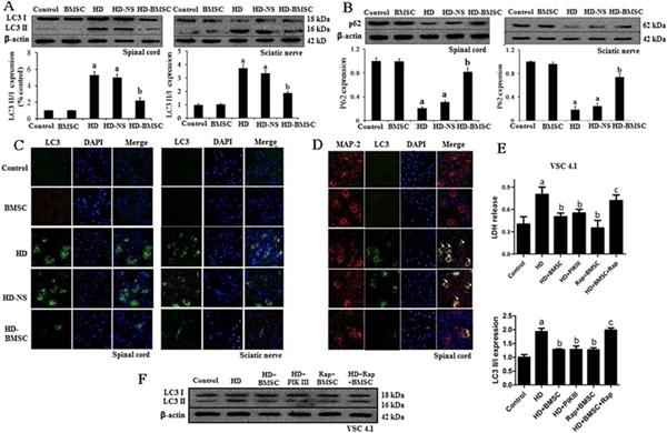 骨髓间充质干细胞抑制HD诱导的大鼠脊髓和坐骨神经自噬活性