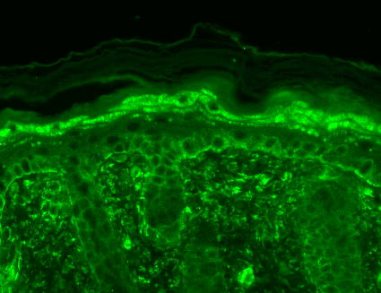 使用小鼠抗TrpV3单克隆抗体 (SMC-334) 对小鼠背部皮肤的免疫组化分析