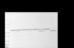 MsrB2處理的氧化Actin的枯草桿菌蛋白酶A分析