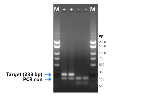 贾第鞭毛虫终点PCR试剂盒厂家测试