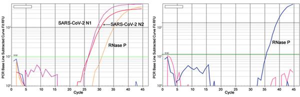 离心柱法RNA提取