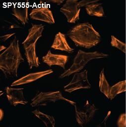 SPY555-actin