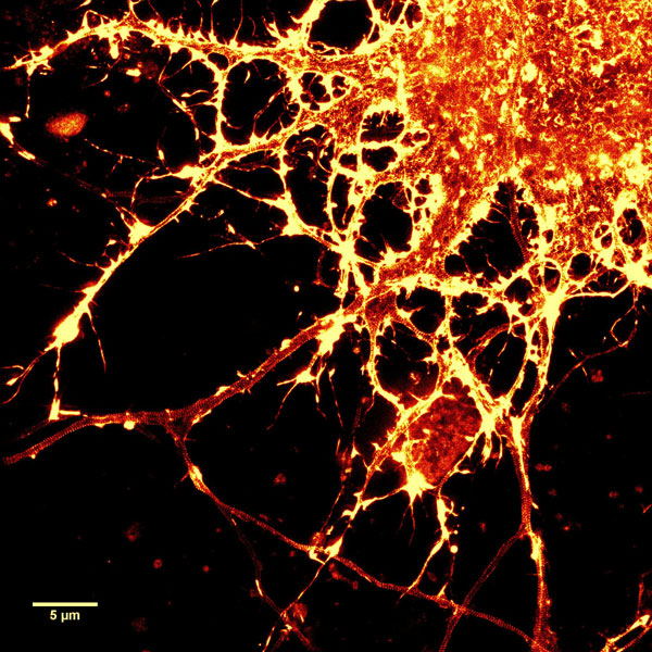用SiR-Actin染色的培养大鼠海马神经元的STED图像
