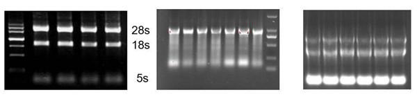 5s rRNA 的亮度